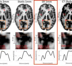 A new imaging technique has the potential to detect neurological disorders — such as Alzheimer's disease — at their earliest stages, enabling physicians to diagnose and treat patients more quickly. Termed super-resolution, the imaging methodology combines position emission tomography (PET) with an external motion tracking device to create highly detailed images of the brain.