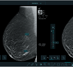 Studies show new deep-learning algorithm helps radiologists detect breast cancers in their early stages when used with the Genius 3D Mammography exam