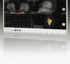 Intuitive Software Supports Breast MR Interpretation