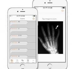 ImageInbox, CHLA, smartphones, imaging files, Lee Daly, Alexandra