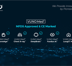 Medical artificial intelligence (AI) solution development company VUNO gained the Class IIa CE markings for five of their AI solutions.
