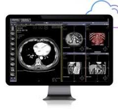Infinitt PACS 7.0 is a faster, more powerful viewer that was built from the ground up to support AI for image analysis and for operational/ workflow improvements in radiology