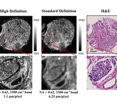 Comparisons of high definition and standard definition infrared imaging for digital histopathology. Image courtesy of the Beckman Institute