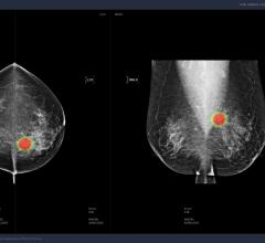 Lunit's algorithm showed the best performance compared to other commercialized AI algorithms, ultimately reducing the workload of radiologists to classify mammography screenings