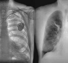 The KA X-ray technology gives doctors a clearer view of a patient's lungs by separating the bone structure (left) and soft tissue (right).