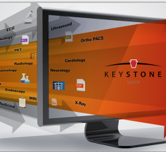 Technology imaging technology news keystone suite fandeluxe Images