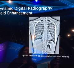 Dynamic Digital Radiography Used to Assess Undifferentiated Dyspnea