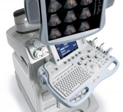 Alpha Source, data study, ultrasound equipment, total cost of ownership