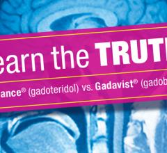 Results were presented at RSNA19 for the comparison of ProHance (Gadoteridol) Injection, 279.3 mg/mL and Gadavist (gadobutrol) Injection in MRI of the brain (the TRUTH study)