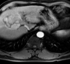 ACR LI-RADS Steering Committee Releases New Version of CT/MRI LI-RADS
