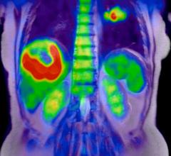 PET imaging, cancer treatment, UCLA study, Caius Radu, dCK