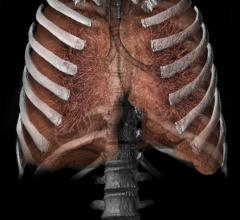 Lung 3D from CT scan_Vital Images