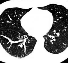 lung cancer screening, low dose CT, recall rates, LUSI, IASLC