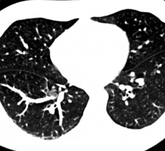 LDCT scans, lung cancer screening, CMS, proposed reimbursement cuts, ACR, Congress