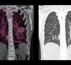 Matrix Analytics Beginning Validation of Deep Learning Lung CT Tools