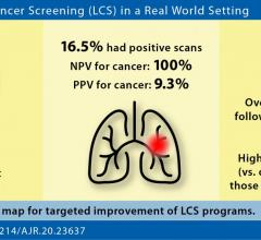 """Our study demonstrates that a real-world lung cancer screening can perform similar to randomized controlled trials in regard to important performance metrics,"" the UPenn authors of this AJR article concluded. Image courtesy of American Journal of Roentgenology (AJR)"