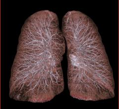 Lung cancer, ASTRO, CT Screen, National Lung Screening Trial