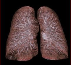 Men Need More Frequent Lung Cancer Screening Than Women