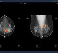 Developed by medical AI company Lunit, Software detects breast cancer with 97% accuracy; Study in Lancet Digital Health shows that Lunit INSIGHT MMG-aided radiologists showed an increase in sensitivity