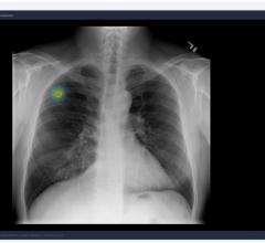 AI Biomarker Demonstrates High Predictive Power for Lung Cancer Immunotherapy