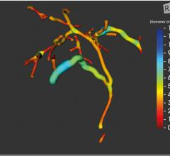 FDA Clears Perspectum's MRCP+ Digital Biliary Tree Viewer