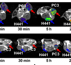 Novel MRI Imaging Agent More Effectively Monitors Impact of Treatment in Lung, Prostate Cancers