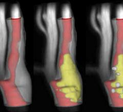 GE, VPDiagnostics Collaborate on MRI of Carotid Artery Atherosclerosis Imaging, Plaque Analysis