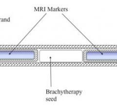 MRI marker