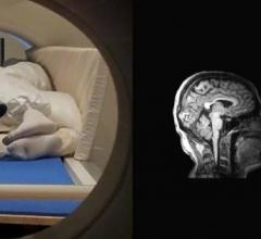 Two people together in an MRI Scanner along with the accompanying image of their brains