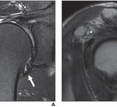 Two magnetic resonance imaging (MRI) findings — joint capsule edema and thickness at the axillary recess, specifically — proved useful in predicting stiff shoulder in patients with rotator cuff tears, according to an ahead-of-print article in the May issue of the American Journal of Roentgenology (AJR)