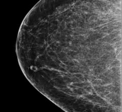 Women 75-plus May Not Benefit from Breast Cancer Screening