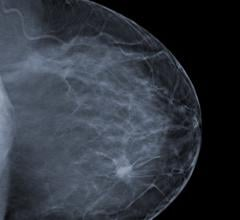 Accelerated Breast Radiotherapy Post-Mastectomy Shortens Treatment Time While Maintaining Tumor Control