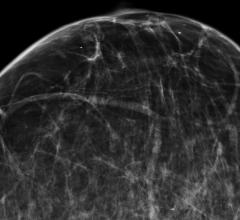 screening mammograms, false positive, true negative, screening behavior, Firas M. Dabbous, Cancer Epidemiology Biomarkers & Prevention