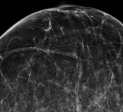 Comparison of Screening Recommendations Supports Annual Mammography