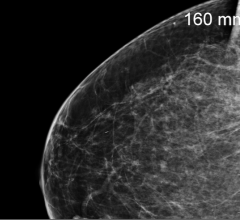 Therapixel Wins the Digital Mammography Challenge
