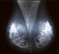 FDA, alternative standard, full field digital mammography, FFDM, qualtity assurance QA
