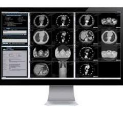Blackford, the centralized medical imaging platform, today announced that it had signed a multi-year agreement with IBM to integrate the Blackford Registration into IBM's AI-ready workflow platform, Merge PACS