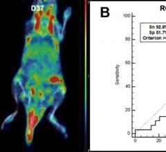 PET Imaging Agent Could Provide Early Diagnosis of Rheumatoid Arthritis