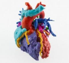 Multicolor model of a congenital heart defect.
