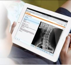 Technology imaging technology news carestream myvue patient portial pacs accessories fandeluxe Images