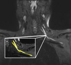 An MR image of a patient in their early 20s shows nerve injury (highlighted in yellow) of the left brachial plexus in the neck. The patient experienced left arm weakness and pain after recovering from COVID-19 respiratory illness, which prompted them to see their primary care physician. As a result of the MRI findings, the patient was referred to the COVID-19 neurology clinic for treatment. Image courtesy of Northwestern University