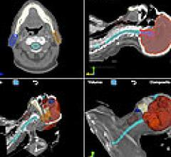 OncoView Offers PACS Features for Image-Based Oncology