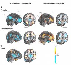 Differences in brain activity between connected and disconnected states of consciousness studied with positron emission tomography (PET) imaging. Activity of the thalamus, anterior (ACC) and posterior cingulate cortices (PCC), and bilateral angular gyri (AG) show the most consistent associa-tions with the state of consciousness (A = general anesthesia, B = sleep). The same brain struc-tures, which are deactivated when the state of consciousness changes to disconnected in general anesthesia or natural sleep