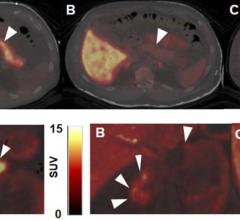 Novel PET Imaging Method Could Track and Guide Type 1 Diabetes Therapy