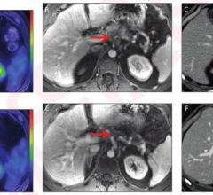 Post-neoadjuvant therapy changes in metabolic metrics from PET/MRI and morphologic metrics from CT were associated with pathologic response and overall survival in patients with pancreatic ductal adenocarcinoma