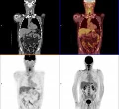 FDG-PET/CT Predicts Melanoma Patients' Response to Immune Checkpoint Inhibitor Therapy