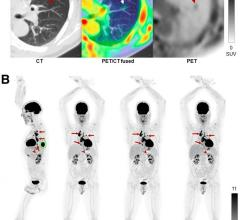 A performance evaluation of the uEXPLORER total-body PET/CT scanner showed that it exhibits ultra-high sensitivity that supports excellent spatial resolution and image quality. Given the long axial field of view (AFOV) of the uEXPLORER, study authors have proposed new, extended measurements for phantoms to characterize total-body PET imaging more appropriately. This research was published in the June issue of TheJournal of Nuclear Medicine.