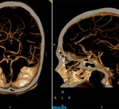 A low-dose neuro CTA using a Philips Ingenuity CT.