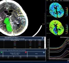 Philips Introduces IntelliSpace Enterprise Edition for Radiology