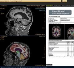 NeuroQuant Software Compatible With Hitachi 1.2T, 1.5T and 3.0T Hitachi MRI Scanners